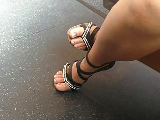 horrible feet